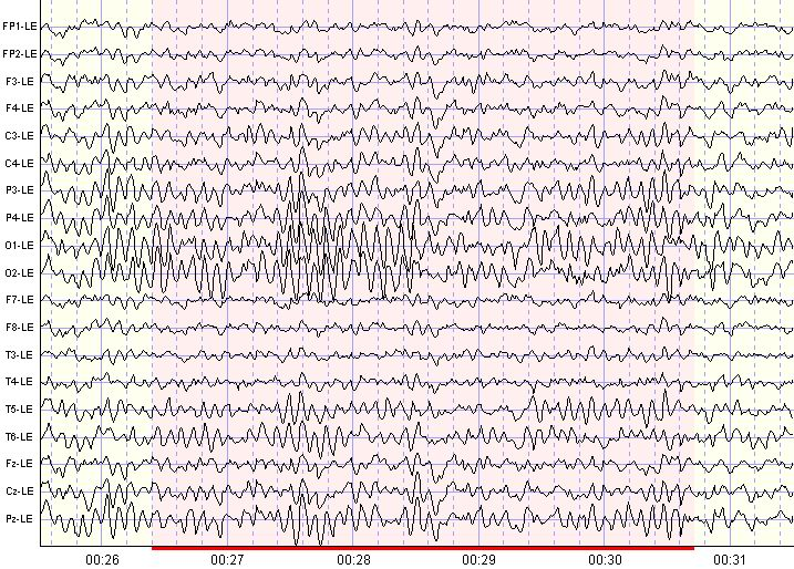 QEEG and EEG Biofeedback Fact Sheet